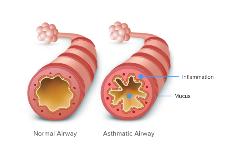 Graphic of normal airway compared to asthma airway